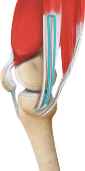 acl-reconstruction-hamstring-tendon