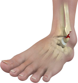 ankle fracture surgery perth ankle injury treatment perth wa