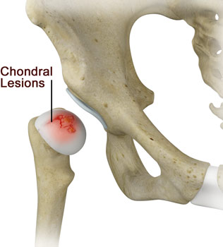 Chondral Lesions or Injuries