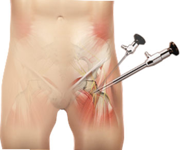 hip-arthroscopy