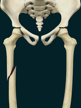 Pediatric Thighbone