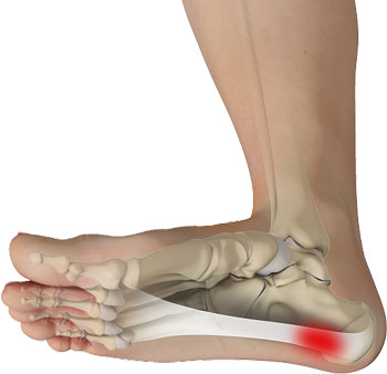 how to deal with plantar fasciitis
