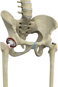 revision-hip-replacement
