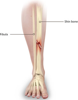 Shinbone Fracture Treatment Perth | Tibial Fracture ...