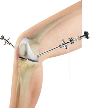 arthroscopy-of-the-knee-joint