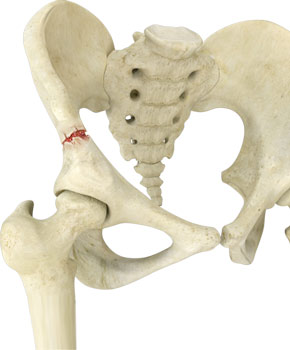 What are the surgical options for a pelvic fracture?